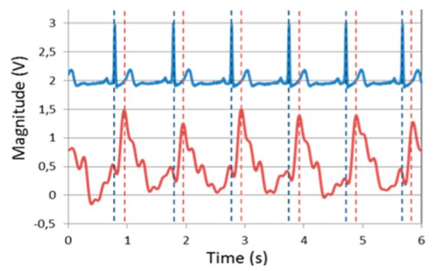 Figure 6. Comparison between classical ECG (blue) with our sensor (red) measuring the pulse wave