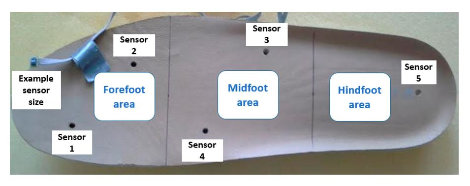 Figure 4. The five sensors were placed in insoles of both the left and right footwear, with the following division of the foot: two sensors for the forefoot, two sensors for the midfoot, and one sensor for the hindfoot.