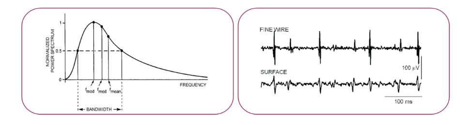 Figure 1. Sketch of a typical raw EMG signal recorded with fine wires or patch electrodes
