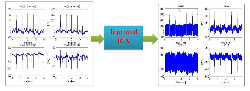 Figure 10. A superior physiological signal acquisition through an improved ICA algorithm