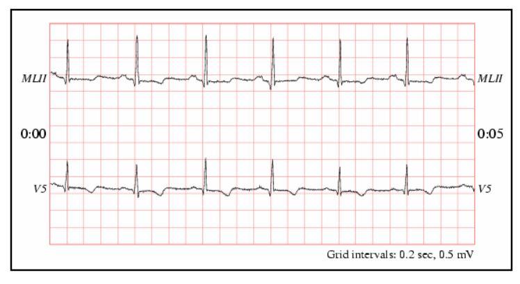 Figure 9 Example of Chart-O-Matic ECG signal