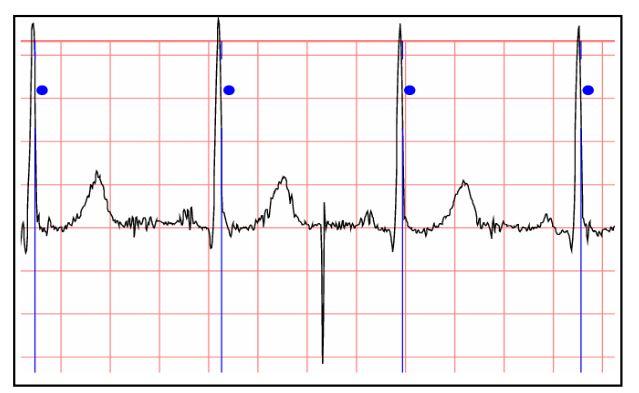 Figure 26 Physionet File stdb_313 Waveform Segment
